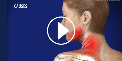 Myofascial-Pain-Syndrome-Treatment-and-Management