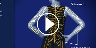 Peripheral-Neuralgia