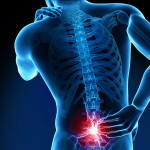 Injections for chronic back pain