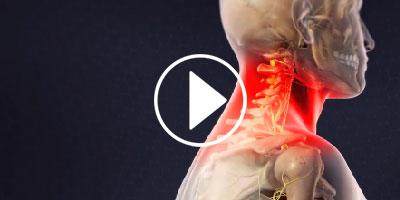 CERVICAL-EPIDURAL-STEROID-INJECTION